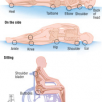 Spinal-Cord-Injury-Pressure-Sores-3