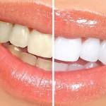 خوردنیهایی که دندانها را زرد میکنند